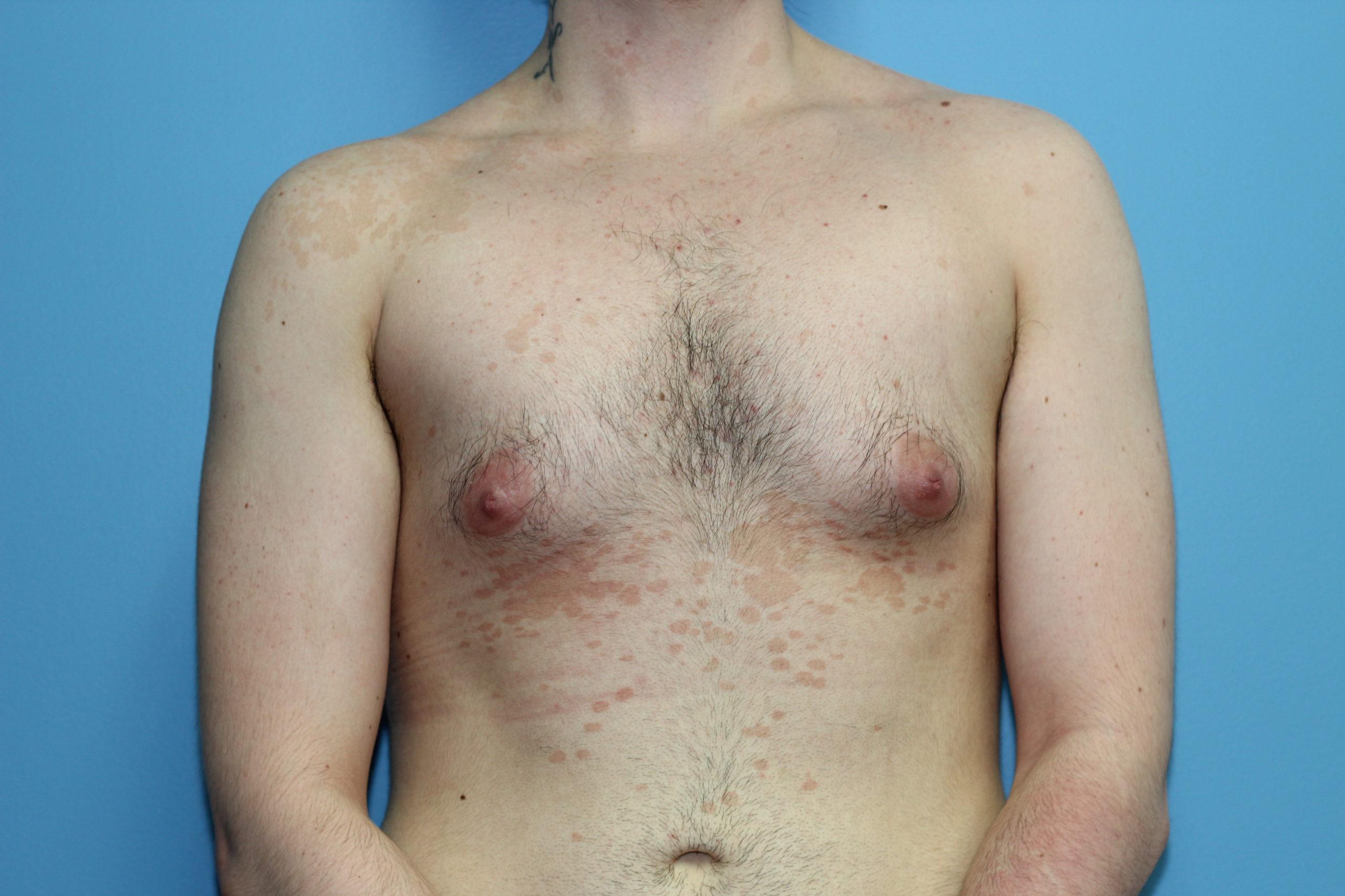 subcutaneous mastectomy Boston